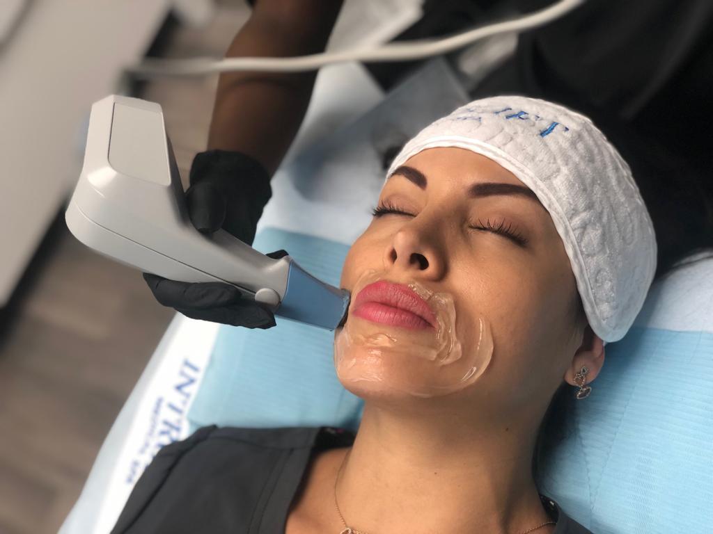 Female patient receiving Exilis treatment on laugh lines