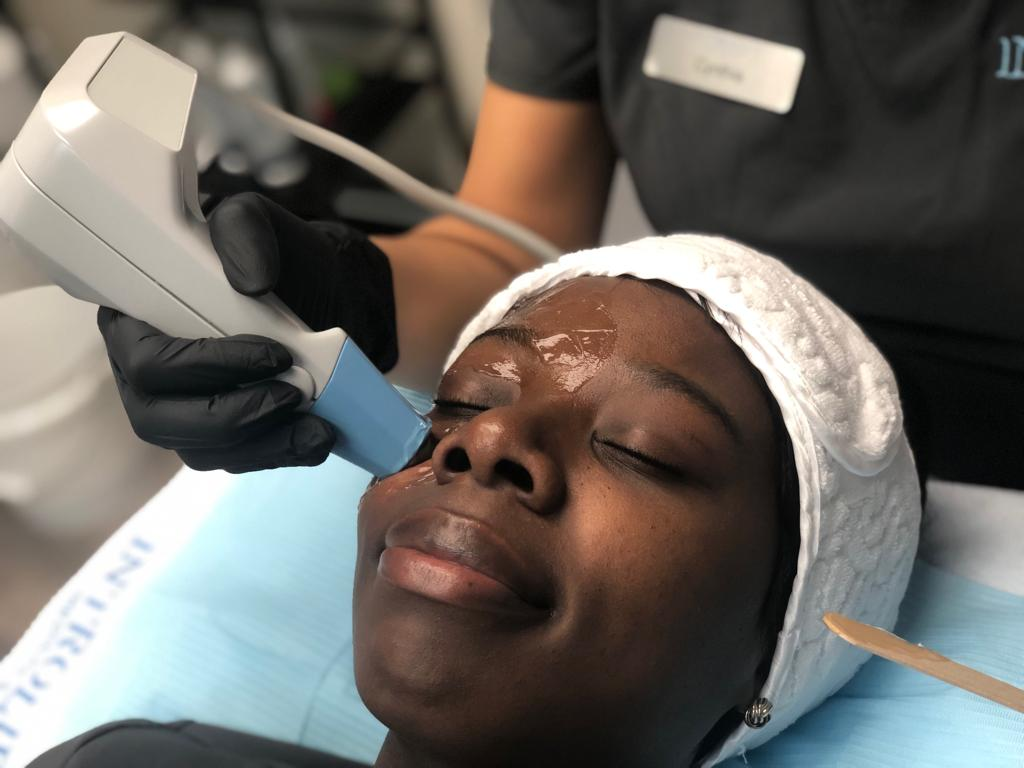 Patient receiving Exilis treatment on undereyes