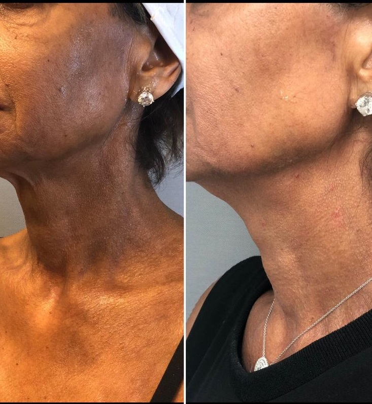 Female patient's neck before and after Sculptra injections