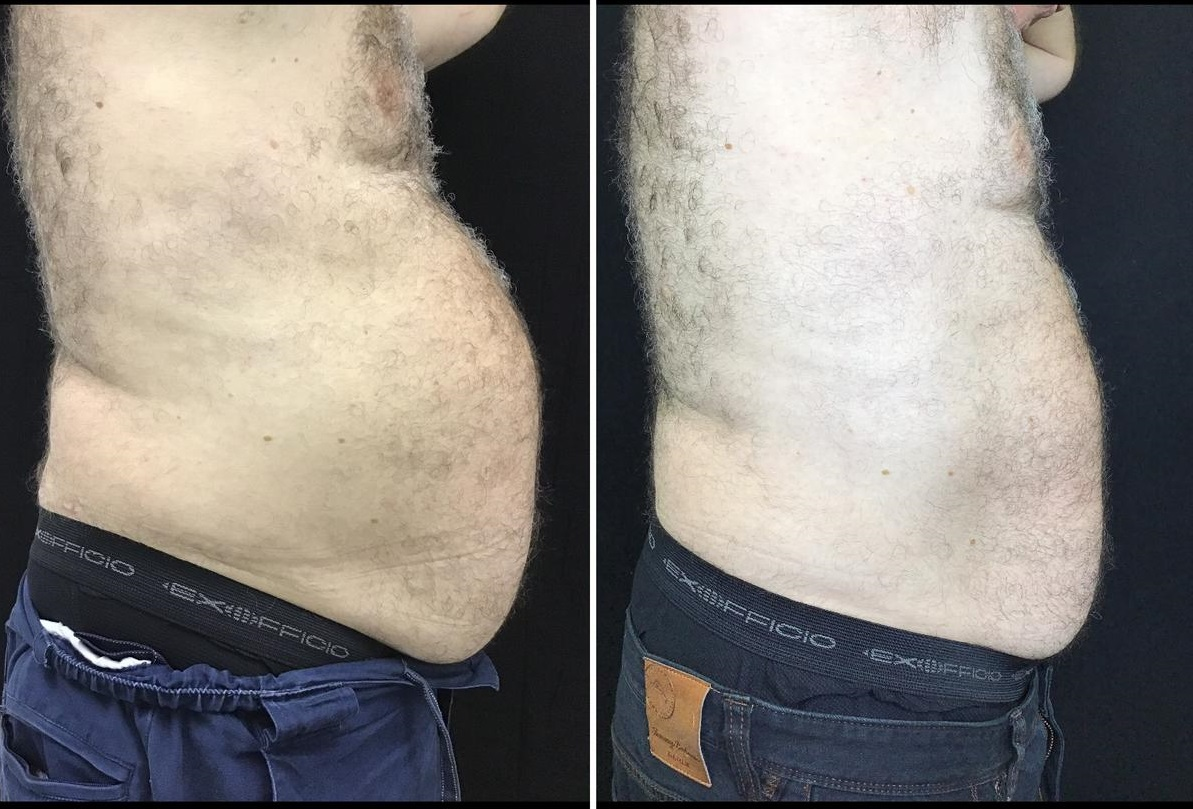 Before and After - side view of male patients abdomen (fat and stomach bulge reduced)