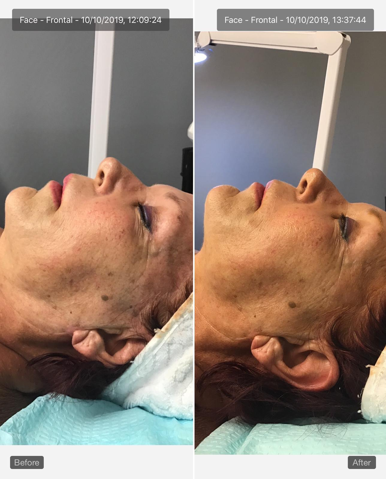 laser rejuvenation before and after