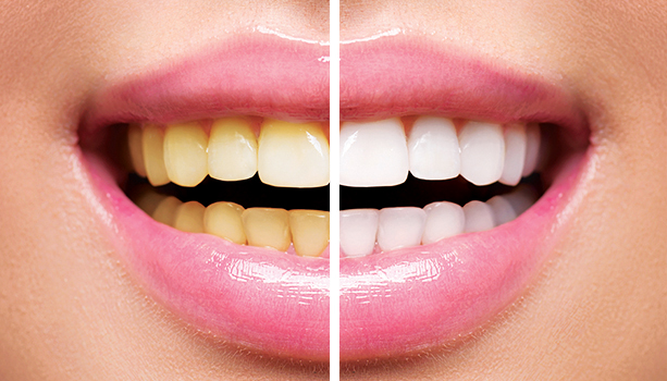 discolored teeth before white teeth after