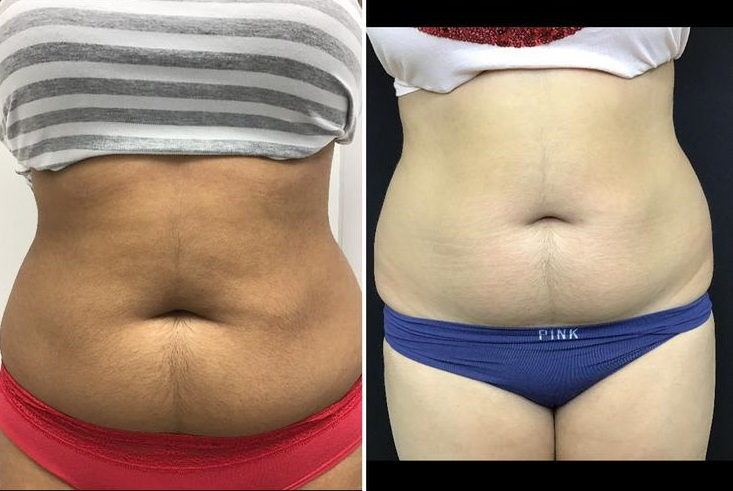 Vanquish abdomen before and after