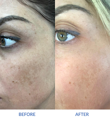 Before and After eMatrix hyperpigmentation Reduced on Female Patient