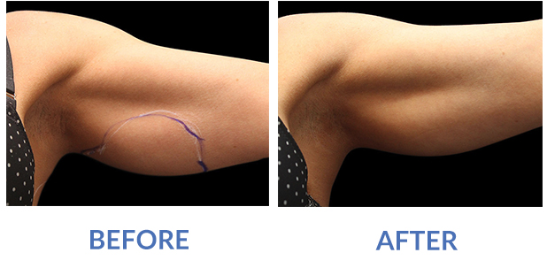 Exilis Arms Before and After