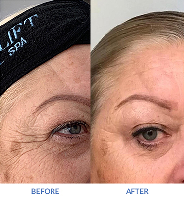 Before and After eMatrix Crow's Feet Reduced on Female Patient