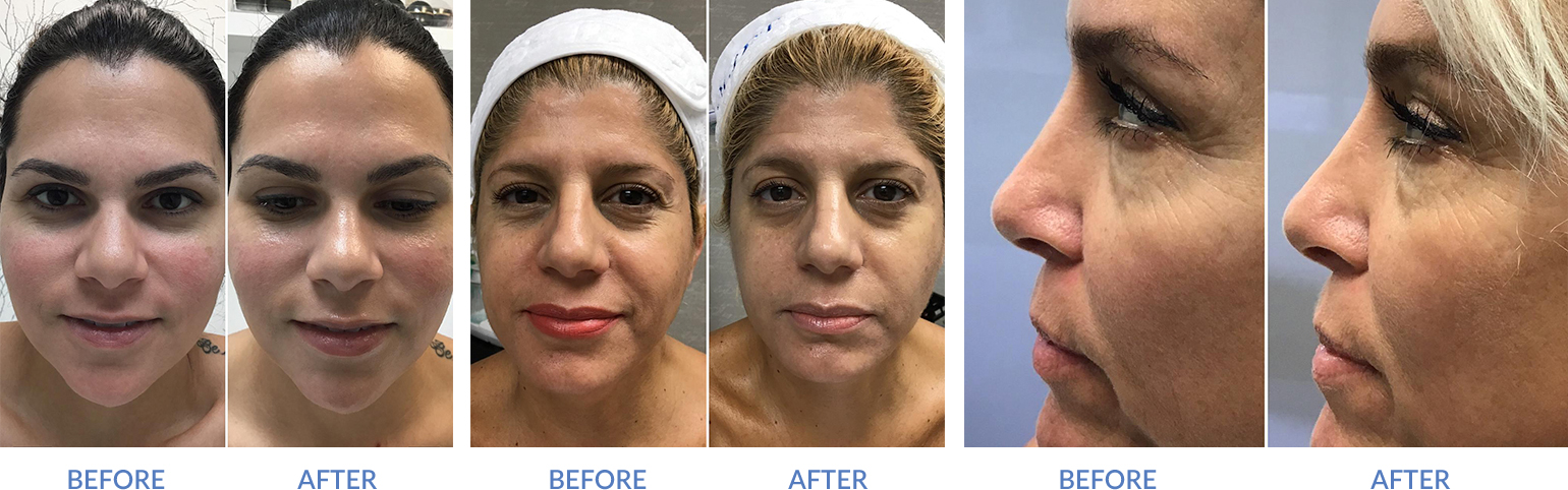 3 patients before and after gold facial