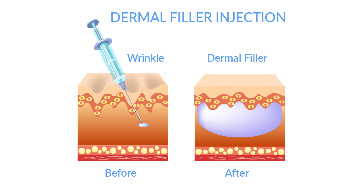 Animated image of skin layers before and after filler injection