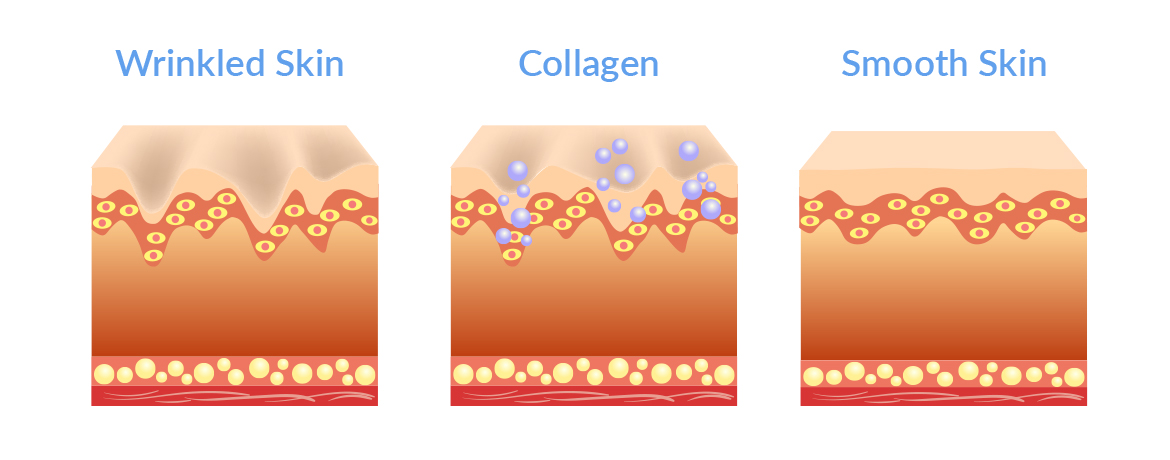 Animated image of skin layers with wrinkles skin, collagen added and smooth skin