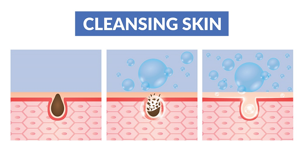 diagram showing how cleansers remove dirt from pores
