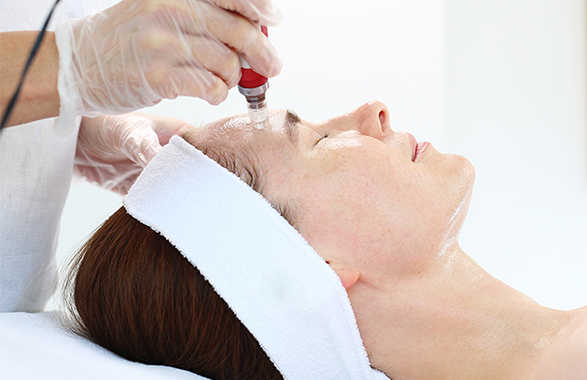 microneedling treatment on woman
