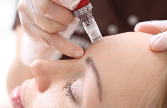 microneedling treatment on woman's forehead