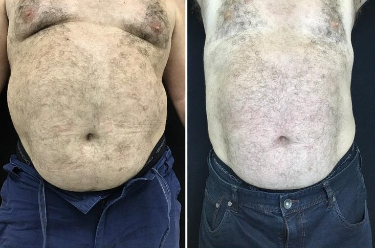 reduced belly bulge with vanquish