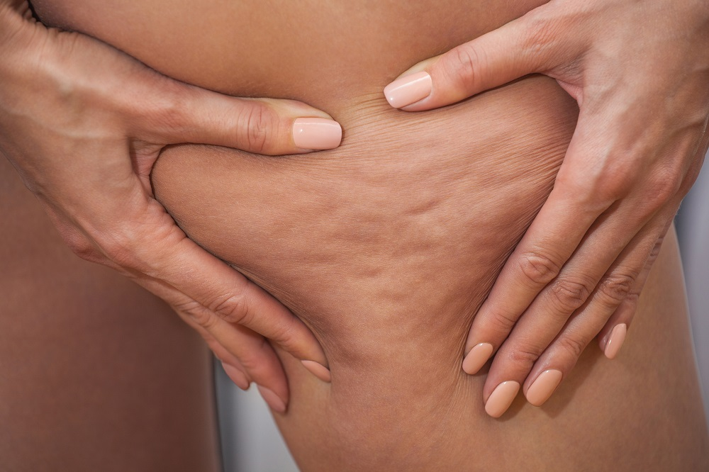 closeup of woman's thigh with cellulite