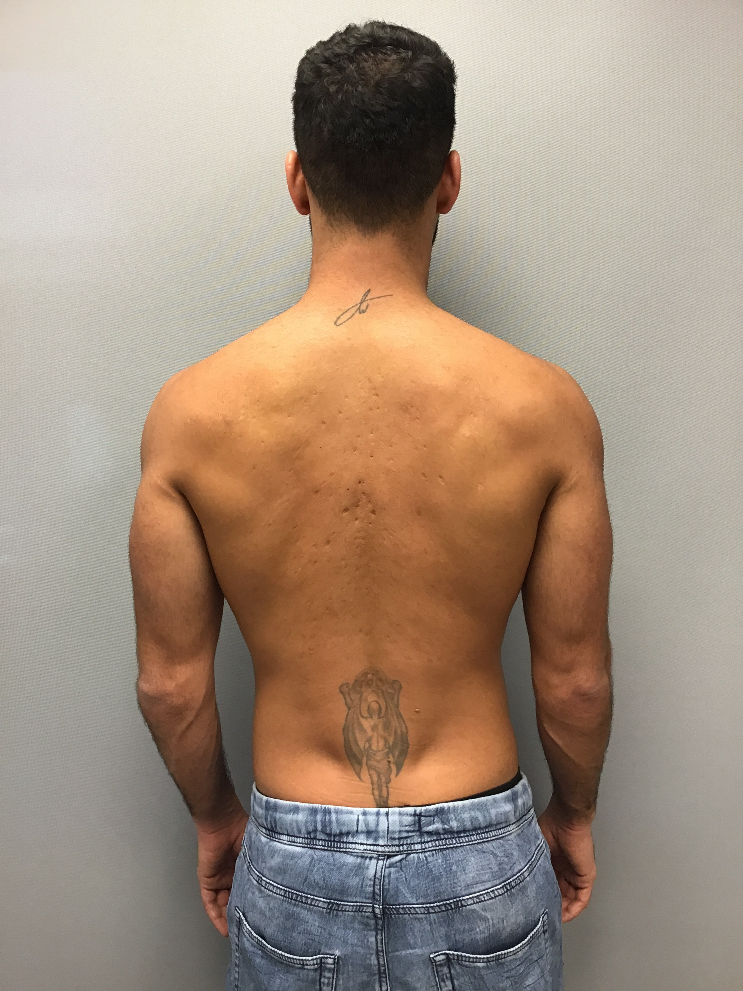 Male Patients Back Before eMatrix - deep acne scars